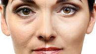 ۱۲ پیشنهاد اساسی جوانسازی پوست