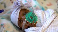 ترخیص کوچکترین نوزاد متولد شده در جهان از بیمارستان