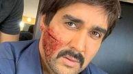 چهره زخمی پوریا پورسرخ بعد از کتککاری + عکس