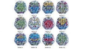 مغز انسان پیچیده تر از این است / کشف 12 حالت مخفی در مغز